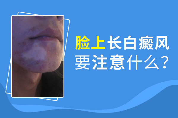 脸上患白癜风应该怎么护理呢?