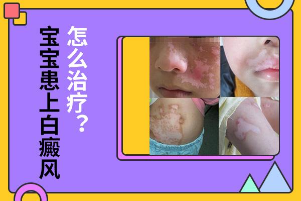 儿童脸上白斑反复该怎么治疗,儿童白癜风