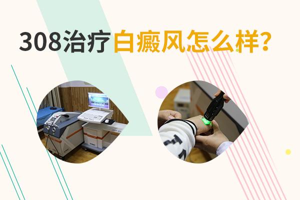 白癜风新对手 第四代308激光分子治疗仪