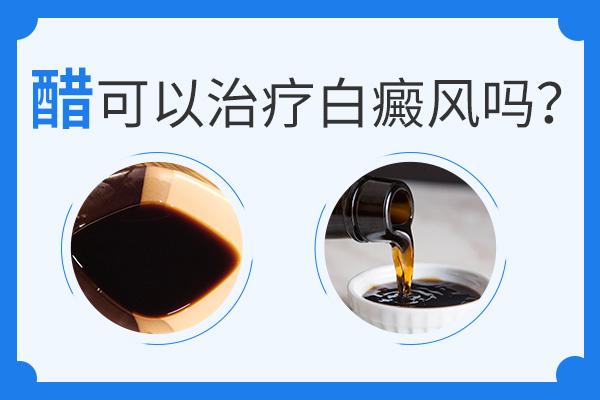 用醋可不可以治疗白癜风疾病?