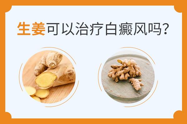 多吃生姜真的能治疗白癜风吗?