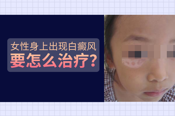蚌埠21岁女性脸上长了白癜风要怎么治?