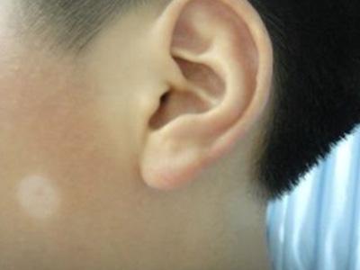 岳阳白癜风医院 白癜风患者怎么护理可以有效避免白斑扩散
