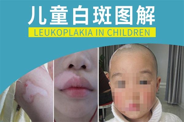 孩子缺锌脸上白斑图片
