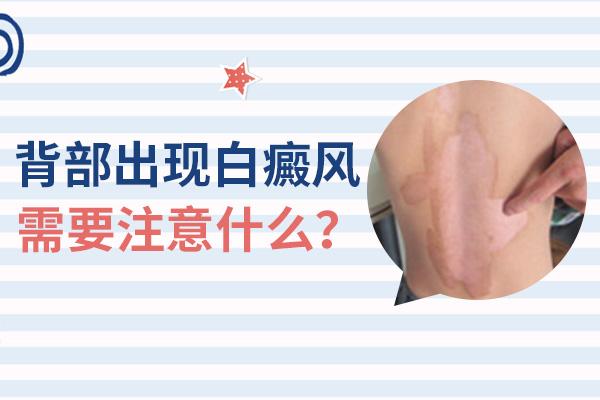 阜阳患者应该如何护理背部白癜风?