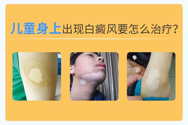 芜湖白癜风医院讲解治疗儿童白癜风用什么方法好