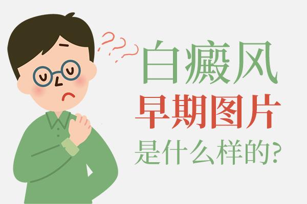 六安面部白癜风早期的症状是什么样子?