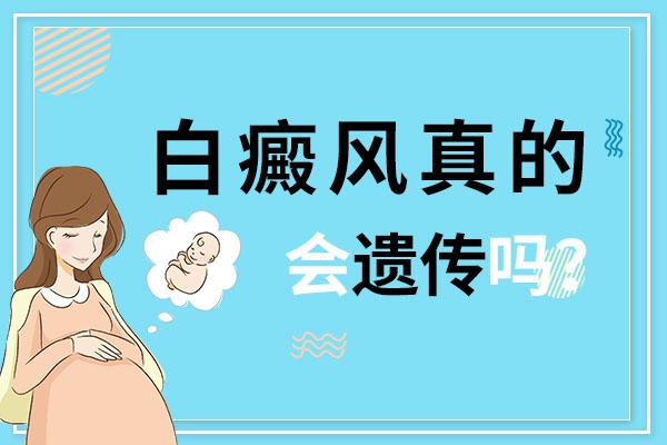 蚌埠男性身上有白癜风会遗传给孩子吗?
