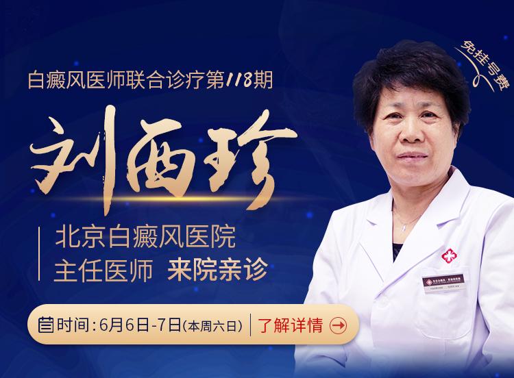 北京白癜风医院刘西珍医生本周将来合肥华研