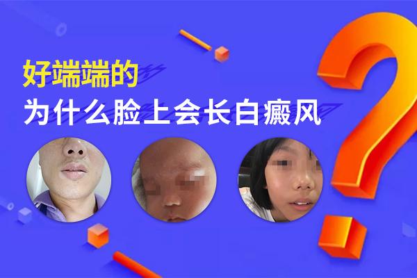 导致脸部发病的因素具体有哪些?