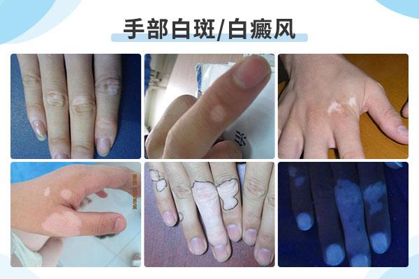 手指上一小块白癜风该怎么治?