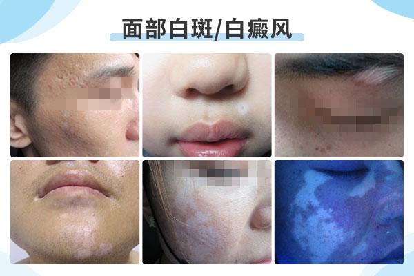 脸部白癜风该怎样治疗比较好?
