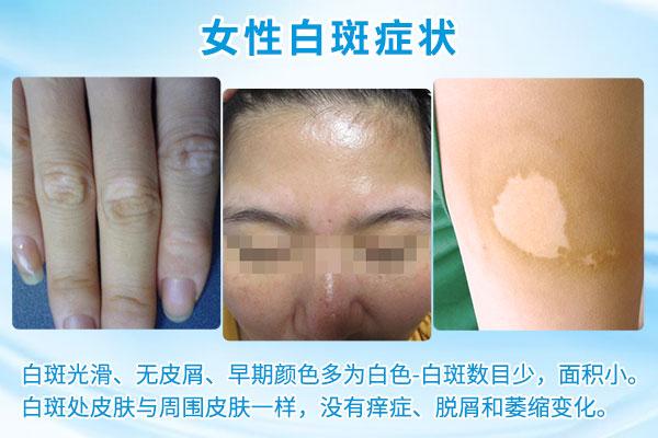 女性白癜风患者可以化妆吗,需要注意的禁忌是什么?