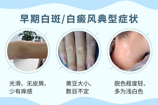白癜风疾病在早期是什么症状?