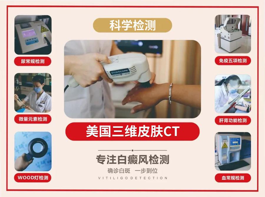 北京白癜风医院刘西珍教授将到合肥华研医院